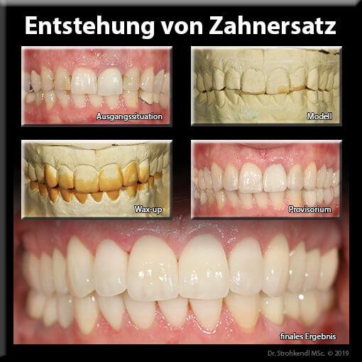 Entstehung von Zahnersatz Stuttgart