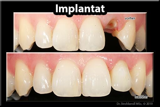 Einzel-Zahnimplantat