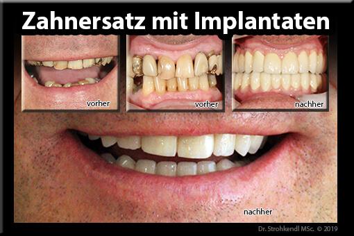 Zahnersatz mit Implantaten