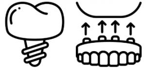 Zahnersatz Implantate Zahnarzt Stuttgart Strohkendl